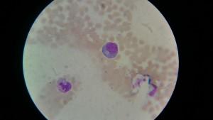 Лимфоцит и нейтрофил
