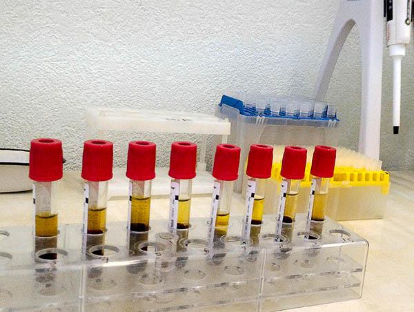общий белок, сыворотка крови